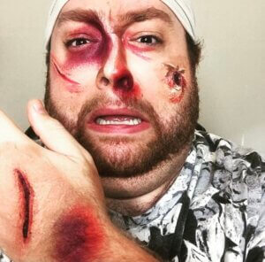 Example of cuts, bruises, and a broken nose through stage makeup techniques